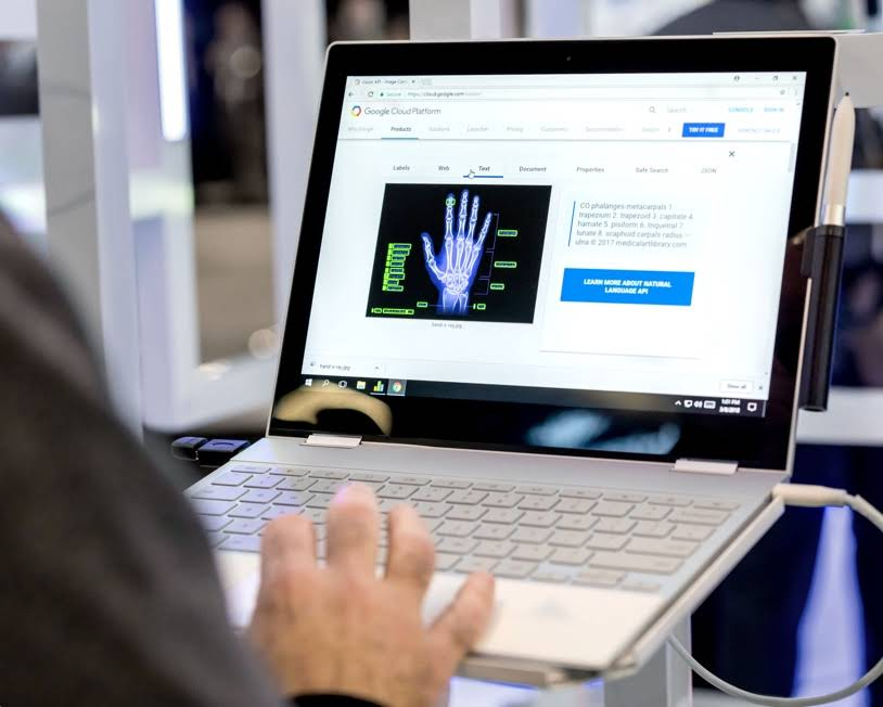 Man looking at an X-ray on a Google Cloud Platform interface on a Chromebook.