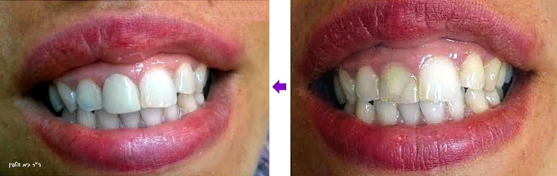 ציפוי קומפוזיט שן חותכת - ד''ר גיא וולפין, שיקום הפה ואסתטיקה דנטלית