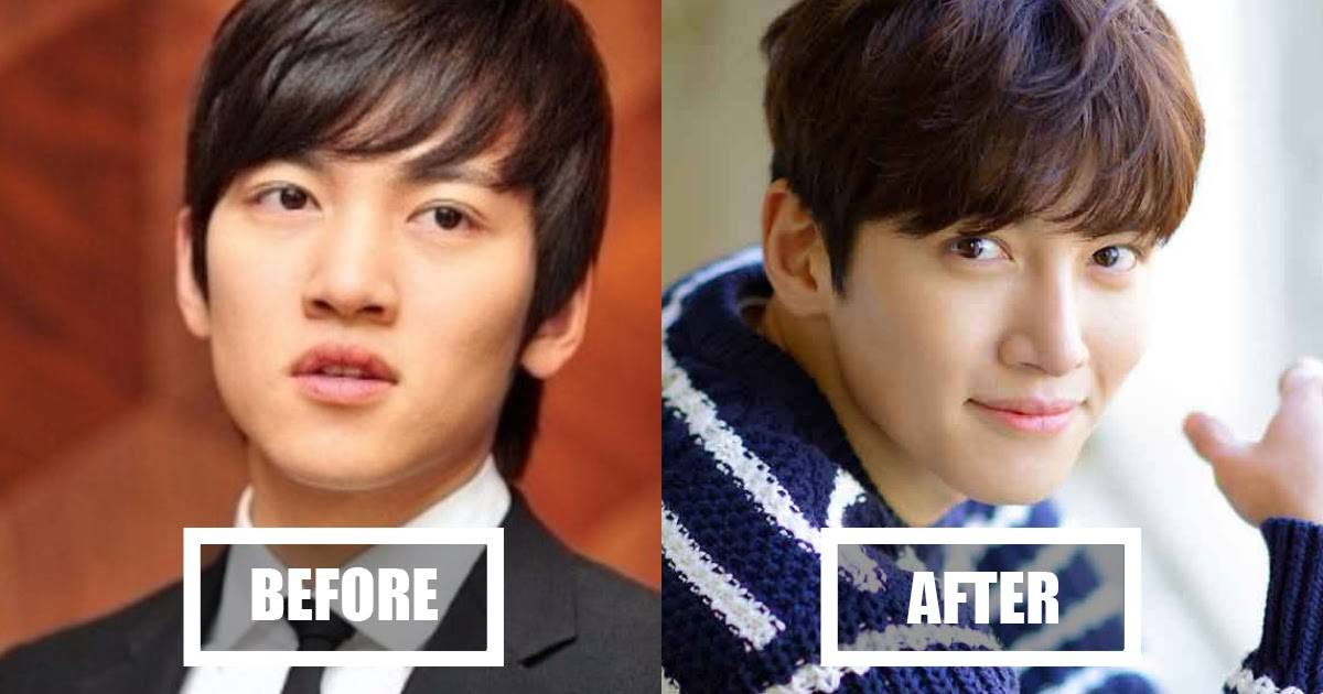 Koreans Cant Decide If Ji Chang Wook Looks Better Before Or After