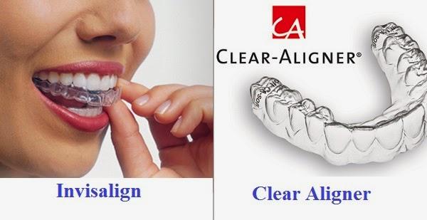 Niềng răng không mắc cài 3d Clear tiết kiệm và thẩm mỹ