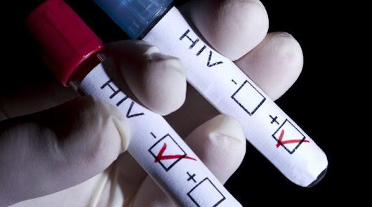 Menores de 30 que practican sexo sin  protección, nuevas víctimas del SIDA