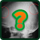 Radiologic signs (game)