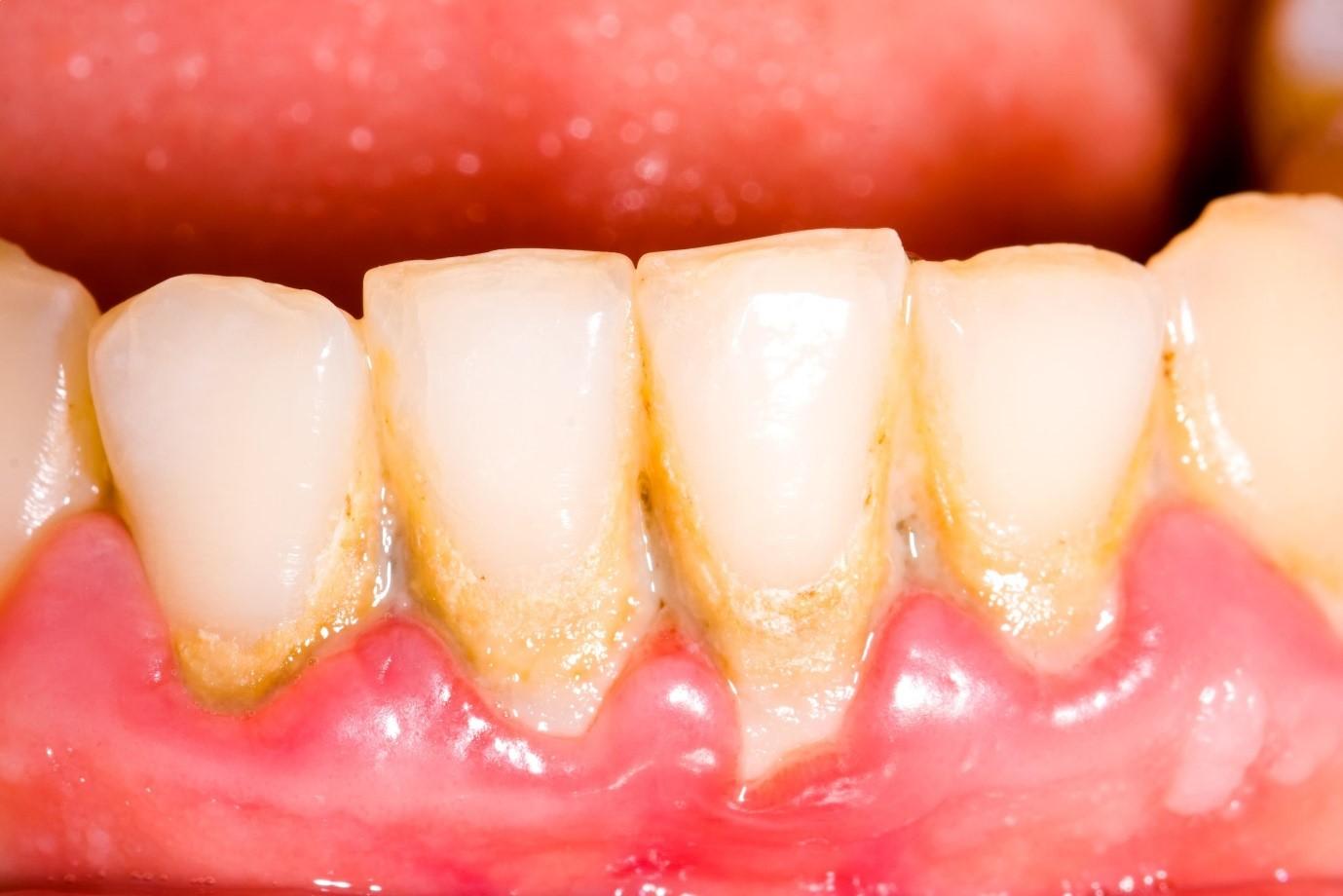 Lấy cao răng có đau không và ê buốt bao lâu thời gian?