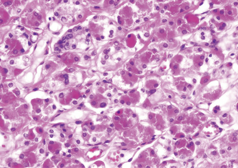 Image result for acinic cell carcinoma breast