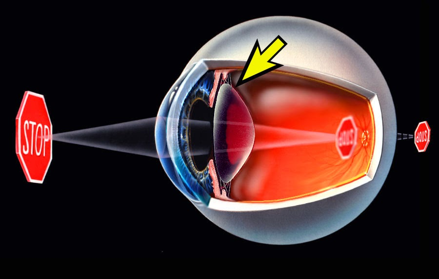 S.LUTENA Vitamin Untuk Mata Rabun Tua
