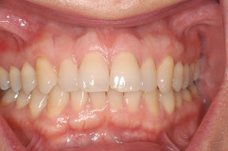 Photo: Patient Eve start. 42 years old. Eve found that her smile was dominated by her two big front teeth.