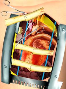 15 Open Heart Surgery Simulator App screenshot
