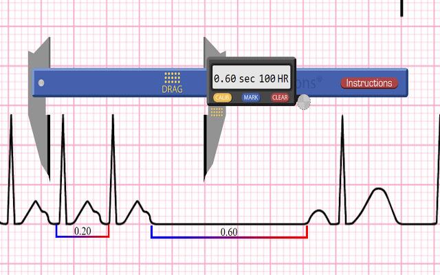 Apex EKG Caliper