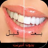 تبييض الأسنان طبيعيا بدون نت