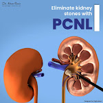 Best PCNL CLINIC in India | PCNL Treatment in India