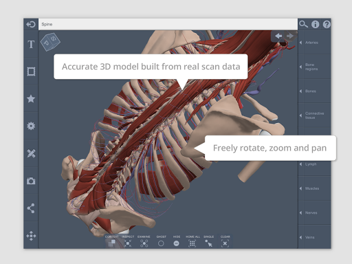 Spine: 3D RT - Sub