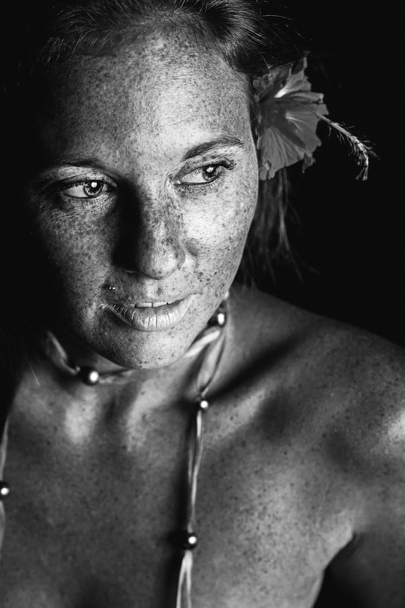 La bellezza delle lentiggini di Laura Benvenuti