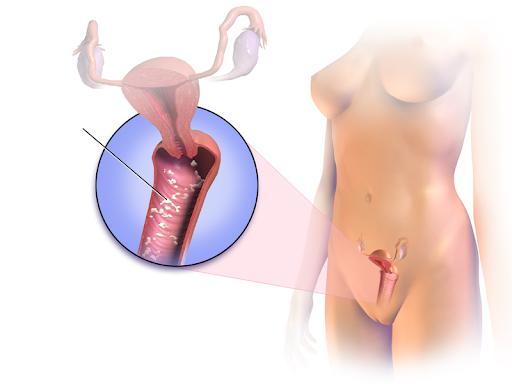 Xử trí viêm tử cung khi mang thai