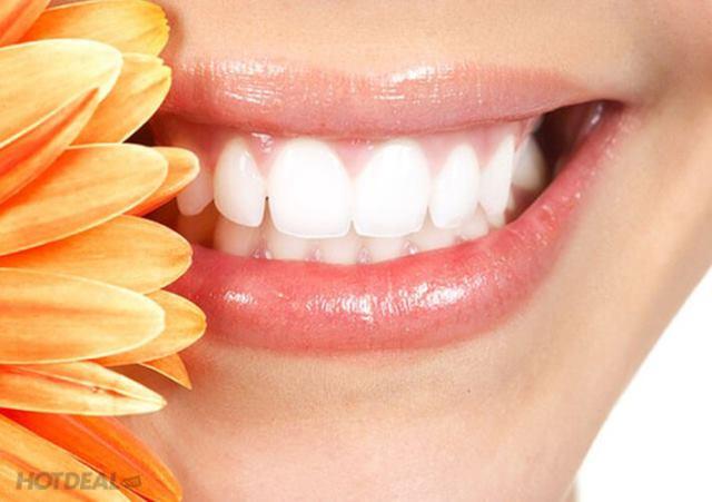 Cách lấy cao răng bằng dầu dừa hiệu quả ngay sau 30 phút 1