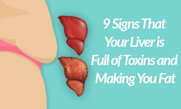 Signs That Your Liver is Full of Toxins and Making You Fat (and How to Stop It)