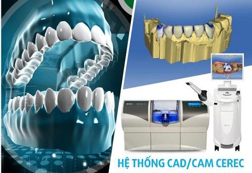 Răng sứ Ceramill ưu điểm và cấu tạo - Nha khoa Quốc Tế Bally