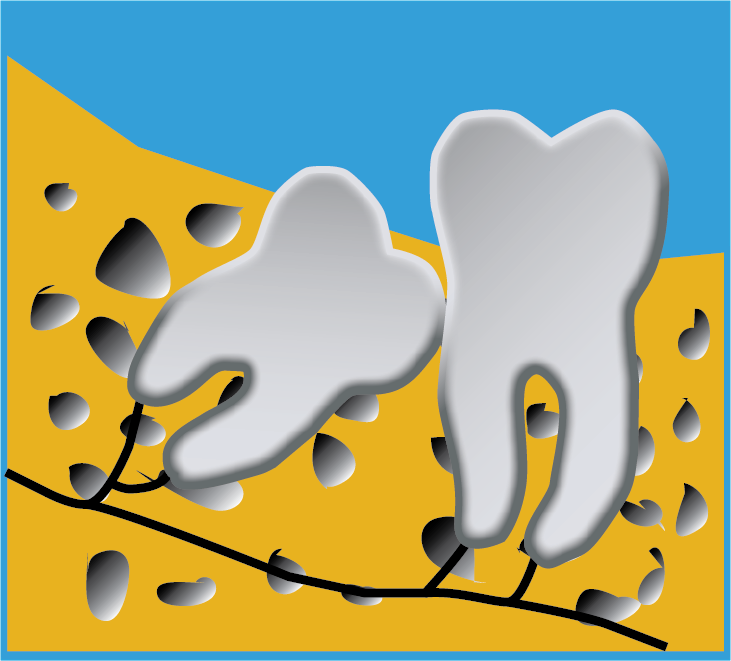 Image of Wisdom Tooth Tilted Forward In Jawbone