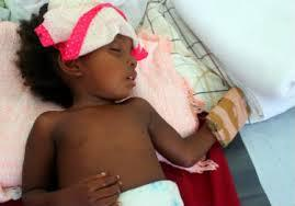 Image result for haitian children cholera  PHOTOS