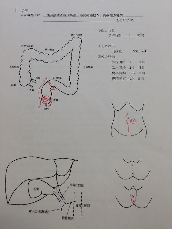 手術説明書