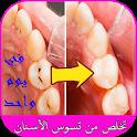 تخلص من تسوس الأسنان في يوم واحد icon