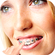 braces photos editor 2018