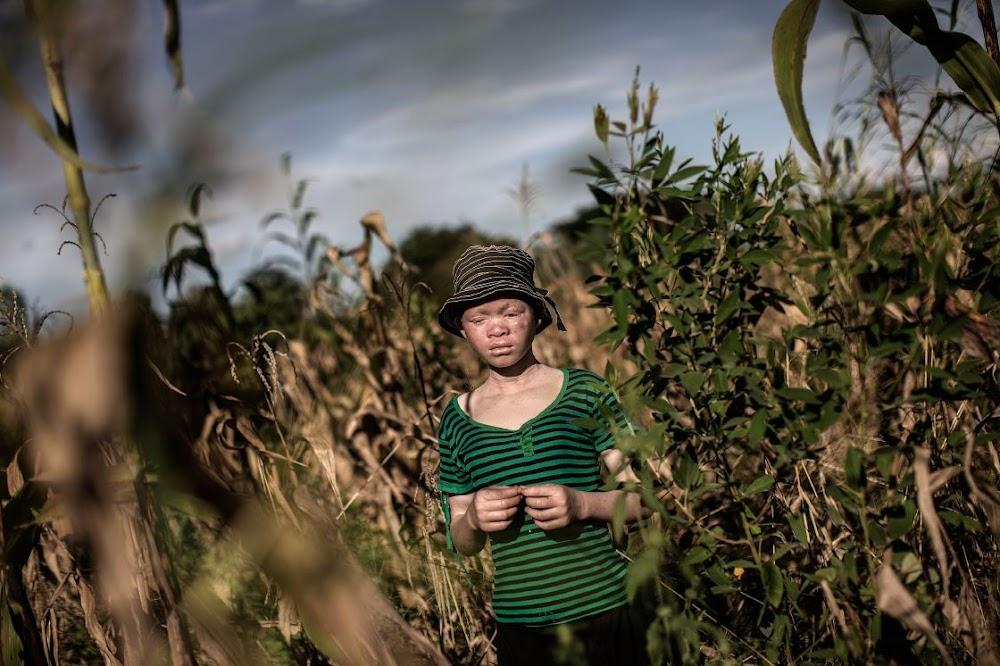 Drie is ter dood veroordeel vir die moord op 'n albino-man in Malawi