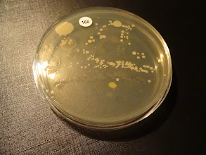 Photo: 160_R getekend met handbacterie