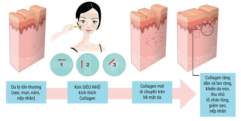 Collagen giúp khắc phục sẹo thâm, sẹo rỗ