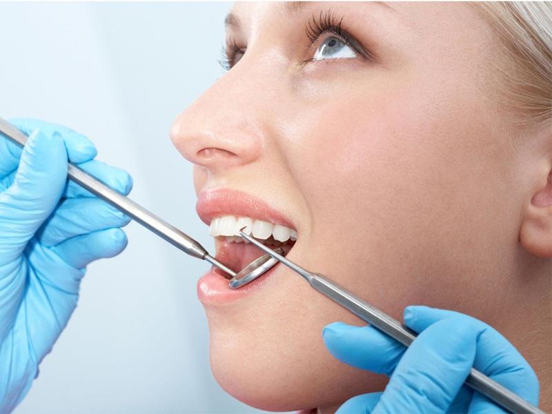 Tác dụng của lấy cao răng là gì? - Nha khoa Bally giải đáp thắc mắc 1