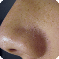 Remove Blackheads Home Remedy download