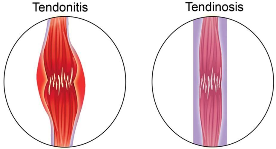 Tendonitis vs Tendinosis - Advanced Physical Therapy