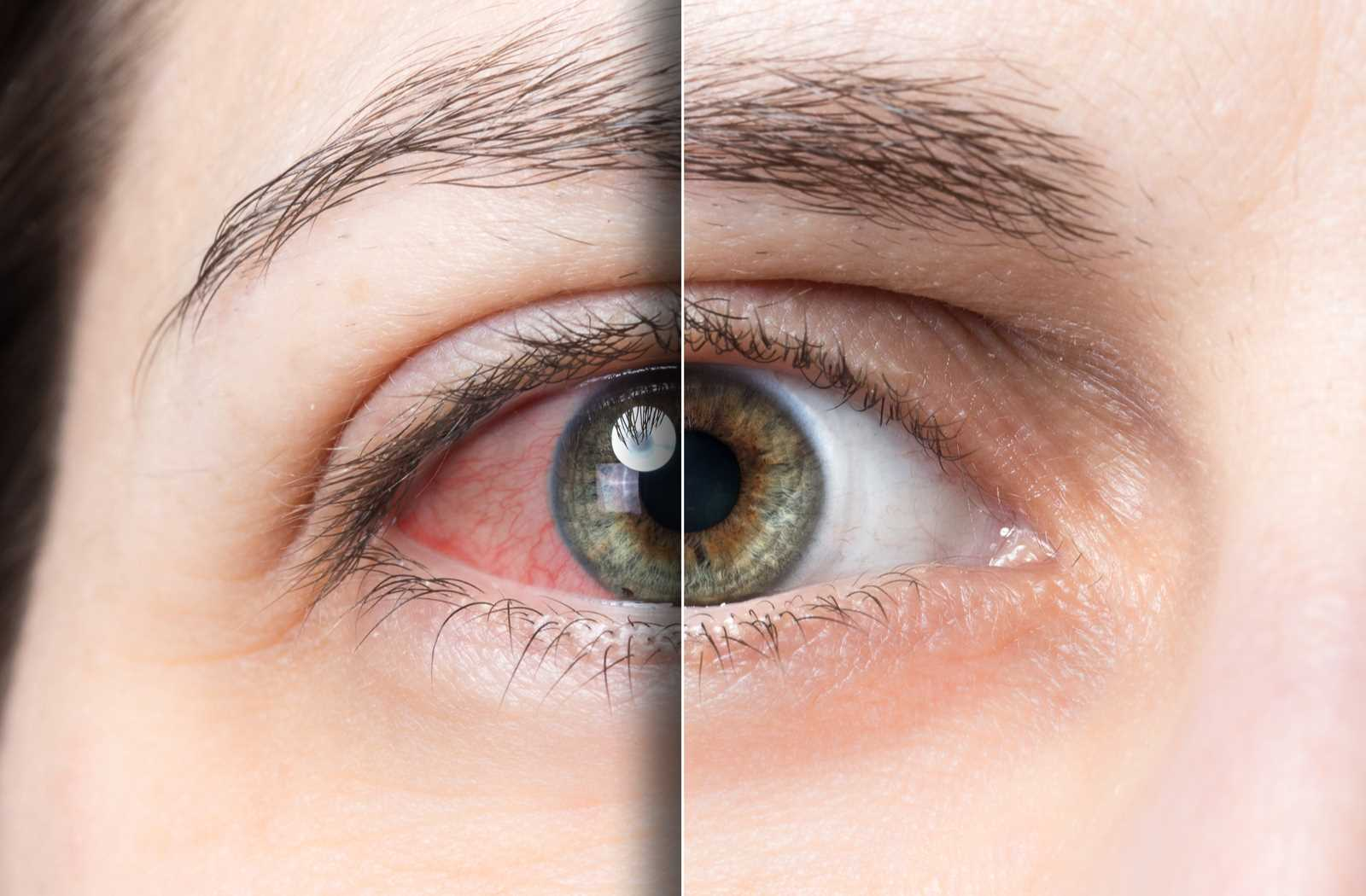 Dry eye and healthy eye mirrored side by side