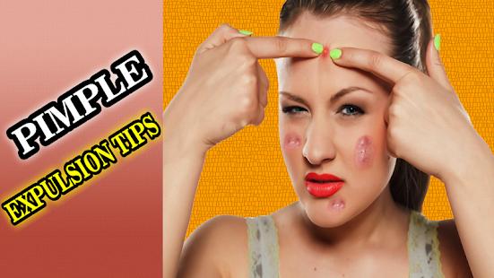 Pimple Expulsion Tips - náhled