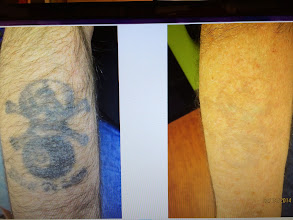 Photo: Side by Side Images of Forearm Laser Tattoo Removal treatments at Las Vegas Dermatology using the RevLite SI. It Typically takes between 10-13 Treatments for complete Laser Tattoo Removal. This is pre-15th laser tattoo removal treatment!