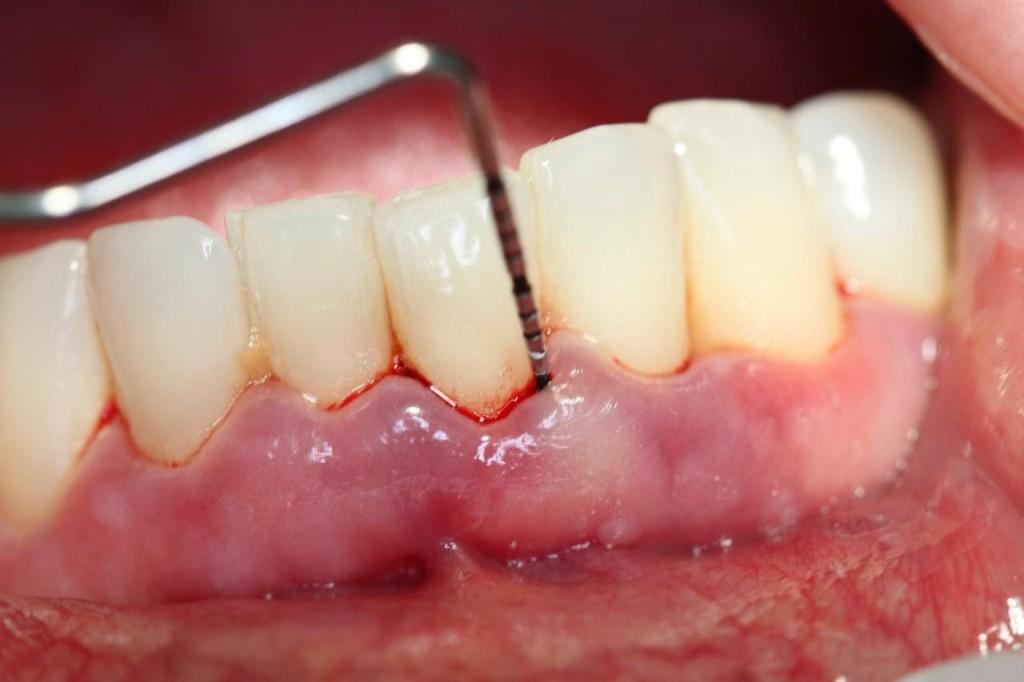 Thực hư tác dụng của việc lấy cao răng - Nha khoa Bally