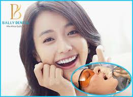 Thuốc tê nhổ răng có tác dụng trong bao lâu là tối đa? 1