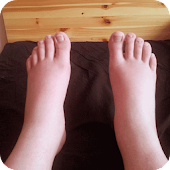 Swelling Feet Home Remedies