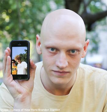 C:\Users\Suparna Modgil\Desktop\Alopecia-Man-Featured-in-Humans-of-New-York.jpg
