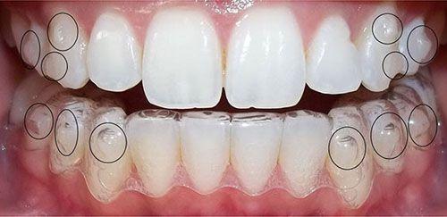 Niềng răng tháo lắp là gì và có hiệu quả không? - Nha khoa Bally