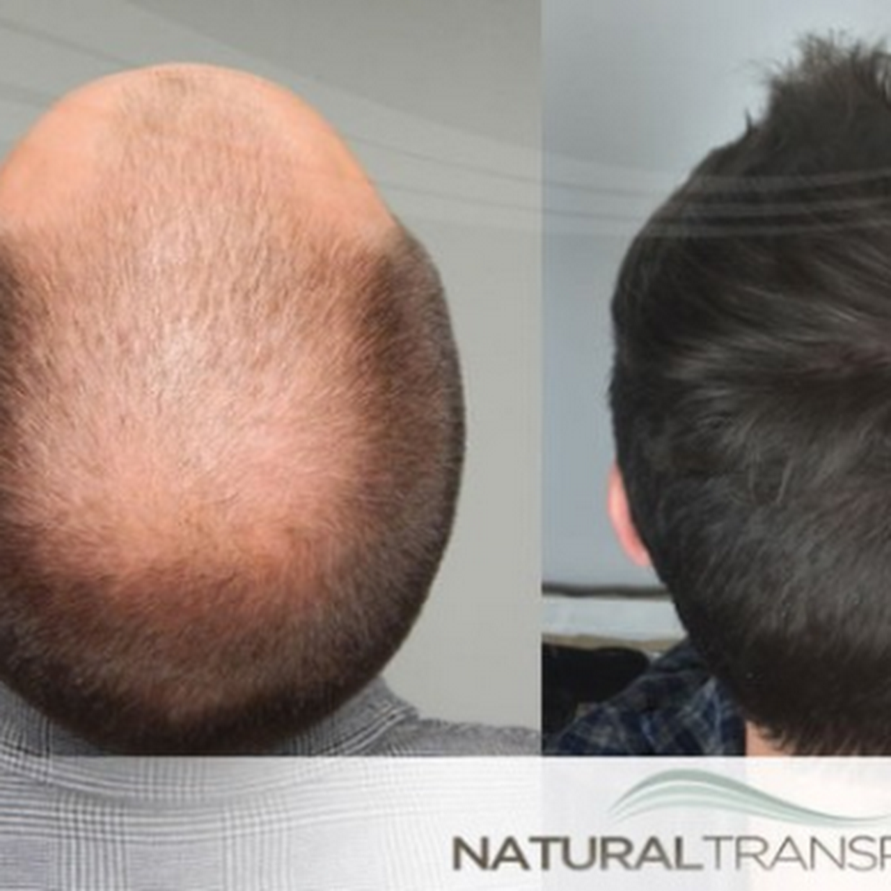 Natural Transplants Hair Restoration Clinic Hair Replacement