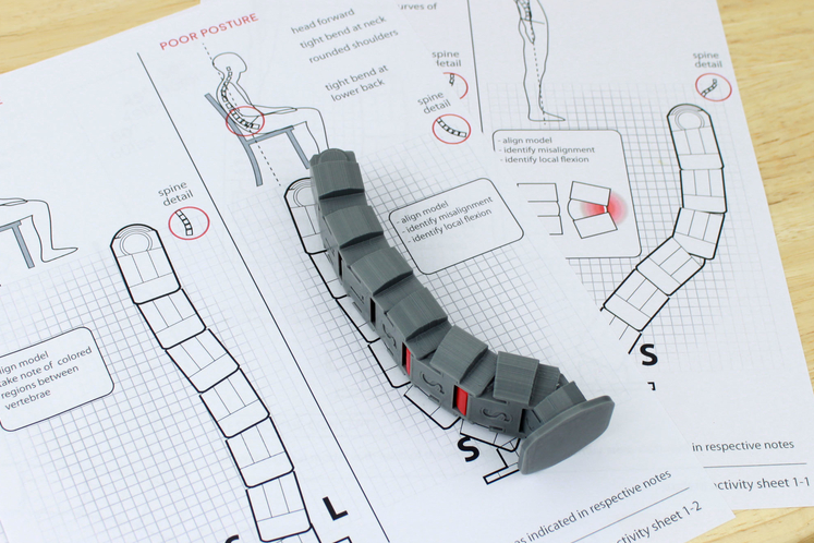 Jacob's Honorable Mention Design for the Neutral Spine Teaching Aid in the Pinshape Create to Educate Lesson Plan Contest