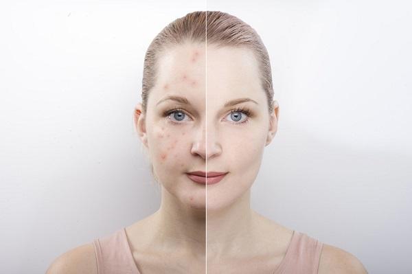 هزینه درمان لک صورت با لیزر