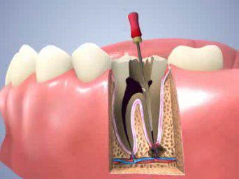 Phương pháp điều trị tủy răng diễn ra như thế nào?