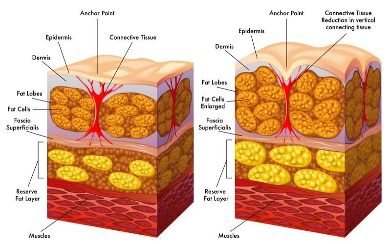 Skin layer diagram showing how fat cells and skin fascia create the dimpled cellulite appearance
