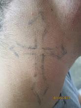 Photo: Pre 8th Laser Tattoo Removal Treatment at Las Vegas Dermatology