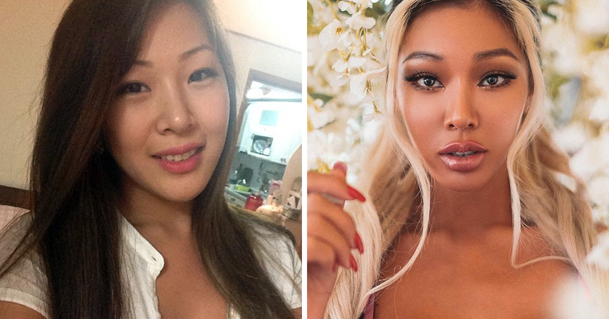 21 Korean Celebs Who Have Undergone Cosmetic Procedures Or Surgery