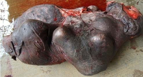 Amorphus globosus severely malformed fetus delivered from a Murrah buffalo.