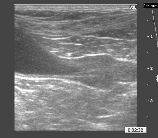 Sonogram of a normal prostate from a middle age neutered dog. The prostate is just right of center in this image and appears in the sagittal plane with craniad being to the left. The prostate of neutered dogs, as seen here, is much smaller (in this case 1.2 x 1.3 cm) than in the intact dog. The prostatic parenchyma is homogeneous, has fine echotexture, and is less echoic than adjacent fat. Immediately cranial to the prostate is the anechoic, triangular shaped urinary bladder. Immediately caudal to the prostate is the pelvic portion of urethra, which is here 0.7 cm thick.