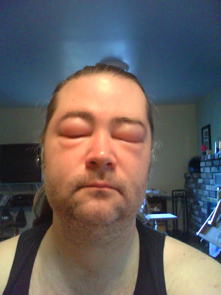 Photo: This is what happens when you get stung in the head three times.