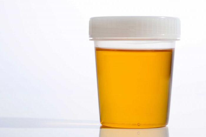 Guide for Passing a Urinalysis with Ease